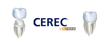 Cerec Crowns Image