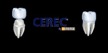 Cerec Crowns Image